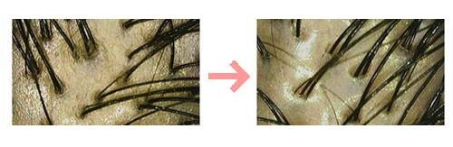 頭皮画像1